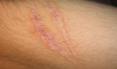 Scar photo